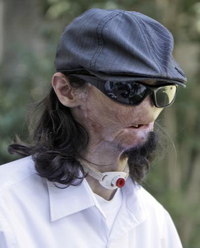Dallas Wiens před transplantací obličeje