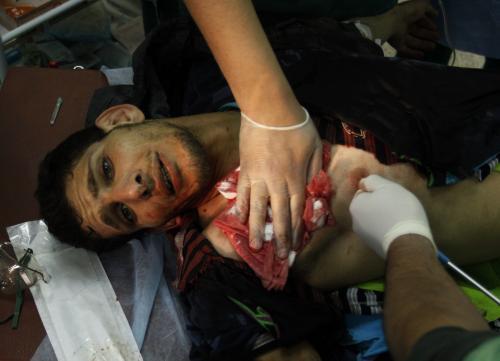 Zraněný libyjský bojovník