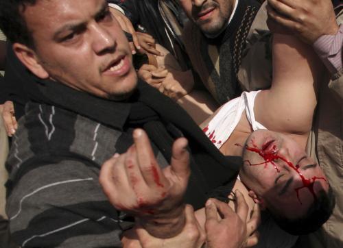 Zraněný egyptský demonstrant