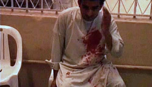 Muž zraněný při teroristickém útoku