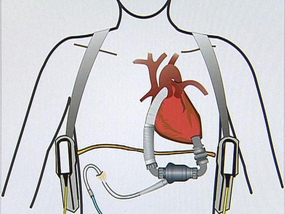 Umělé srdce