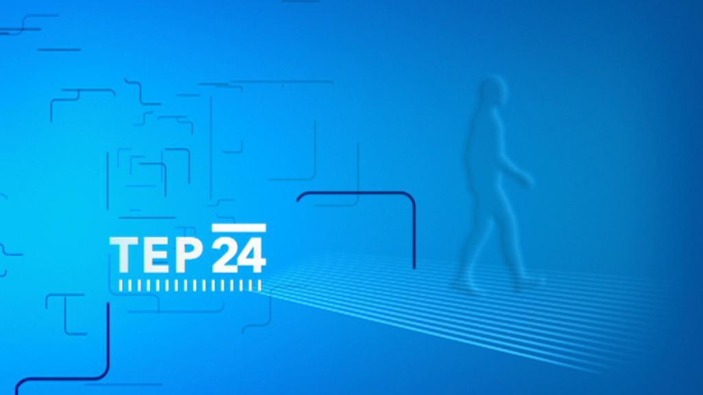Tep ČT24