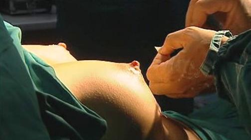 Operace prsu