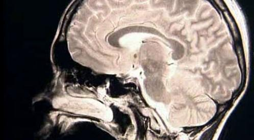 Rentgen mozku