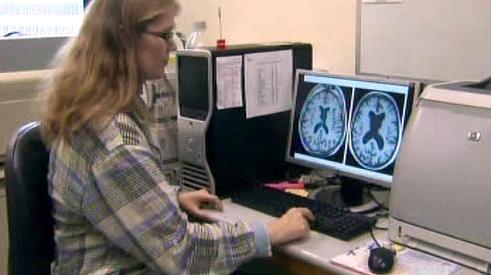 Skenování mozku
