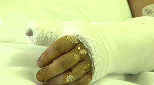 Zraněné ruce