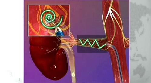 Léčba vysokého krevního tlaku