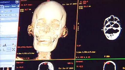 Výzkum egyptských mumií pomocí CT