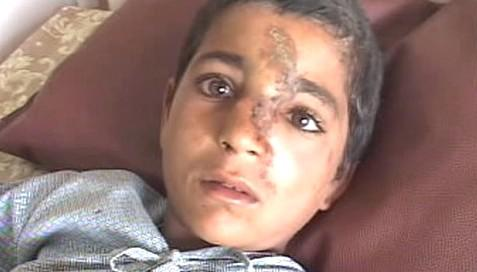 Zraněný afghánský chlapec