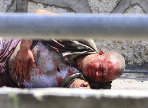 Libanonský voják po přestřelce s Izraelci