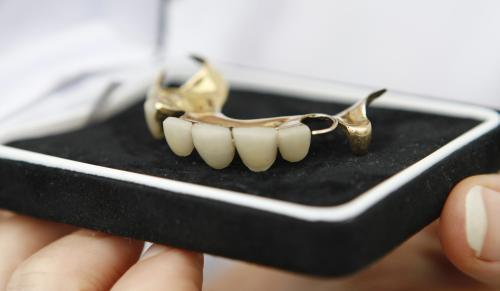 Churchillova zubní protéza