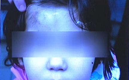 Týrané dítě