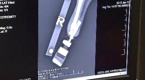 Snímek Oscarovy protézy