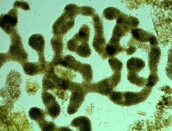 Sinice pod mikroskopem
