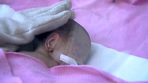 Nedonošené miminko v inkubátoru