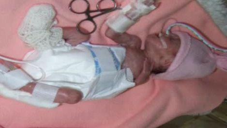 Předčasně narozené dítě