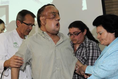 Rafael se po transplantaci obličeje poprvé objevil na veřejnosti