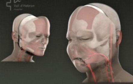 Model tváře operovaného muže