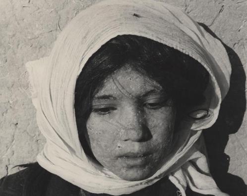 Dívka, která onemocněla pravými neštovicemi