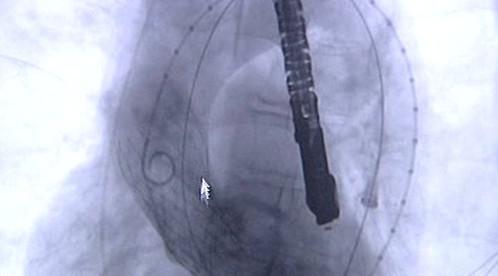 Průběh operace chlopně