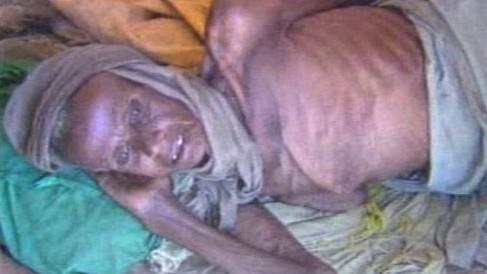 Hladomor v Etiopii