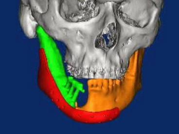 Zobrazení lebky s implantátem