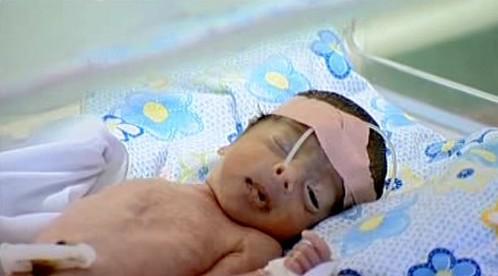 V Iráku se rodí zmrzačené děti