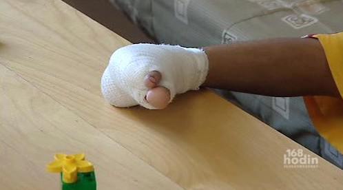 Poraněná noha