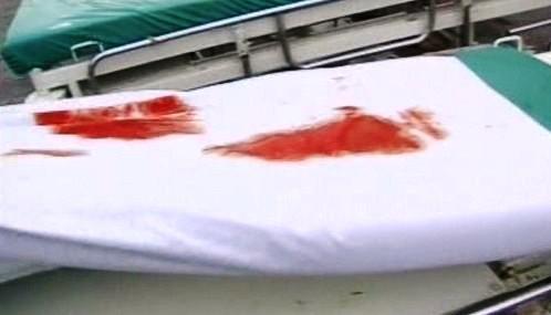 Krvavé skvrny