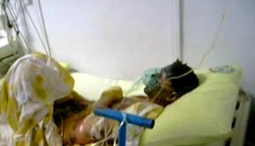 Zraněný turecký horník