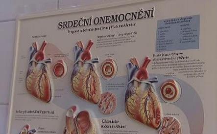 Srdeční onemocnění