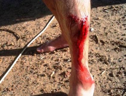 Paulu Welshovi zůstal v noze kus žraločího zubu