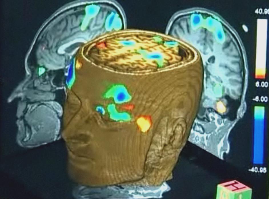 Sken mozku