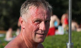 Zraněný Mirek Topolánek