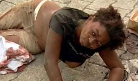 Haiťanka zraněná při zemětřesení