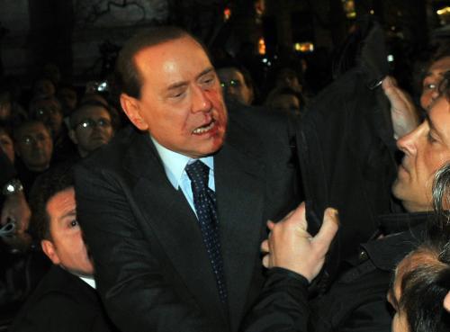 Zraněný Silvio Berlusconi