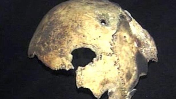 Údajný kus Hitlerovy lebky