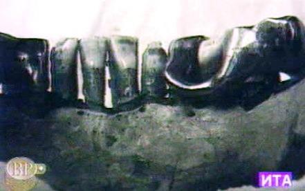 Údajný kus Hitlerovy čelisti