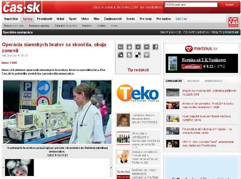 Cas.sk o operaci siamských dvojčat