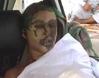 Afghánec zraněný při výbuchu cisterny