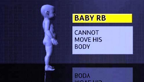 Třináctiměsíční nevyléčitelně nemocné dítě R.B.