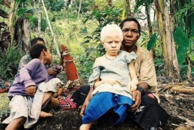 Albínské dítě v Papui-Nové Guineji
