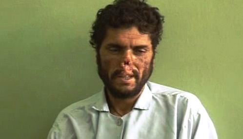 Afghánec zohavený Talibanem
