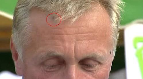 Zraněný Topolánek