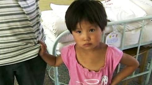 Čínský pacient