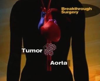Operace nádoru