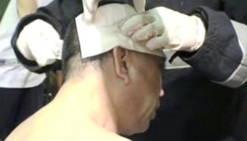 Zraněný po útoku kyselinou