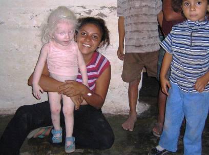 Albínské děvčatko v Hondurasu