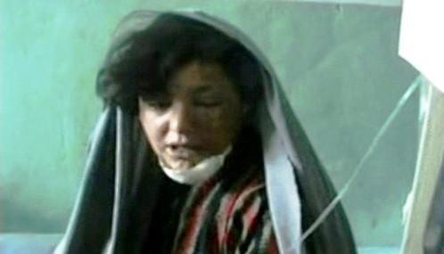 Dívka zraněná při bojích v Afghánistánu