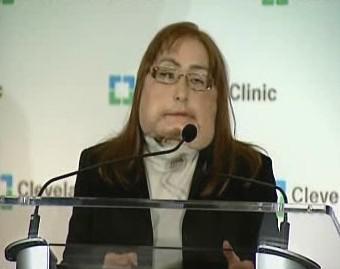 Žena s transplantovanou tváří
